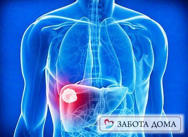 Гепатит а можно ли умереть