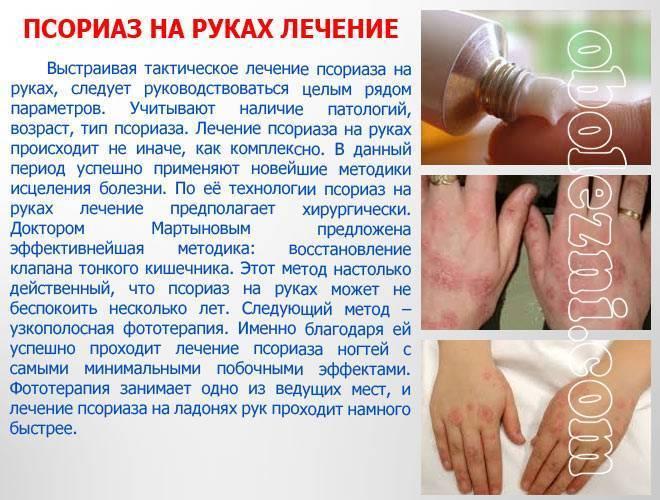 Народные средства лечения псориаза на руках и ногах