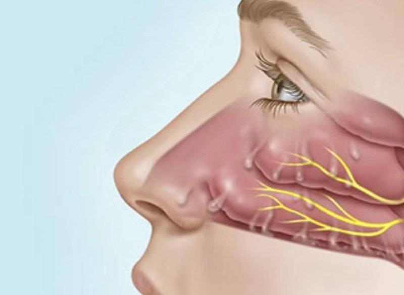 прозрачная жидкость из носа