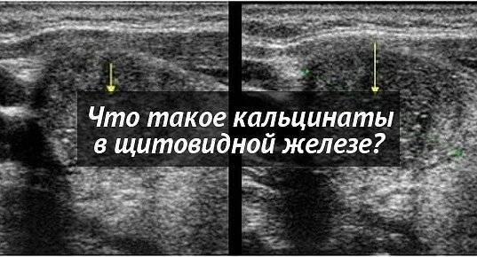 Кальцинированный узел в щитовидной железе лечение: диета, железе, кальцинированный, лечение, отзывы, расшифровка, узел, что это, щитовидной