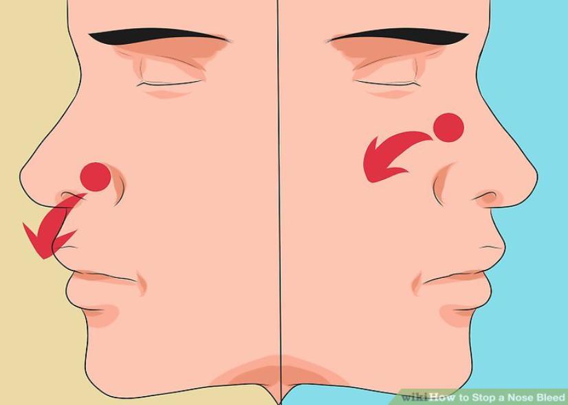 Немеет нос болят глаза