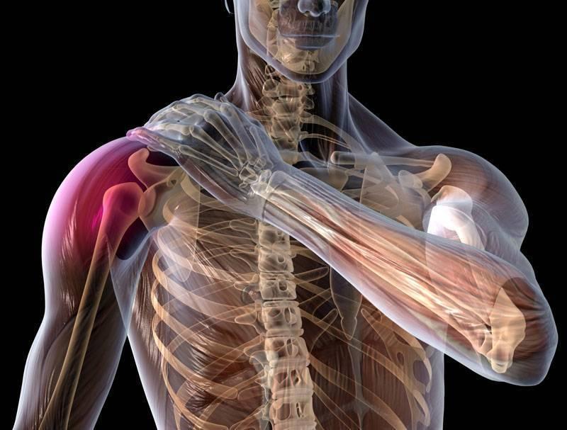 Мышечная невралгия: причины, симптомы и лечение | все о суставах и связках