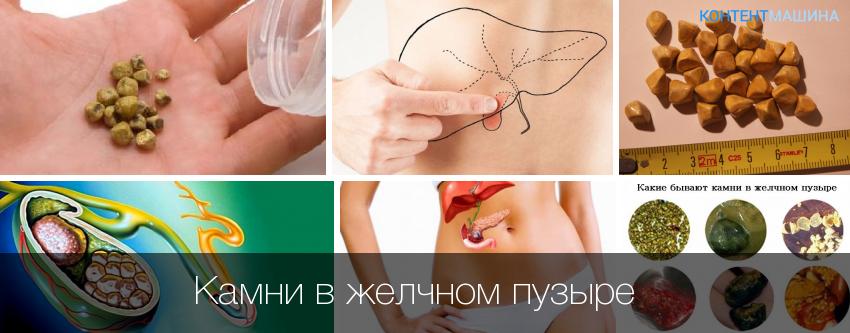 Желчнокаменная болезнь: причины и лечение