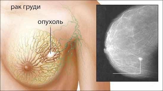 Трижды негативный рак молочной железы