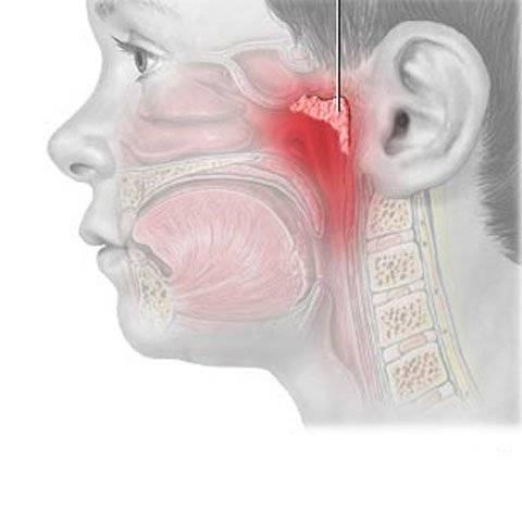 Причины и лечение болей в носоглотке