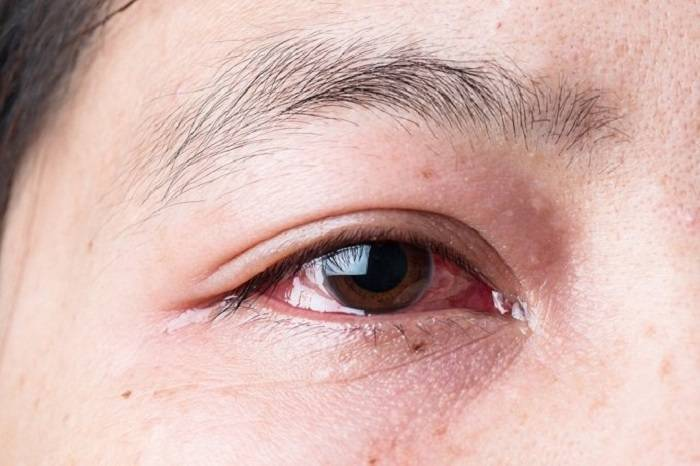 Лопнул сосуд в глазу: причины и лечение