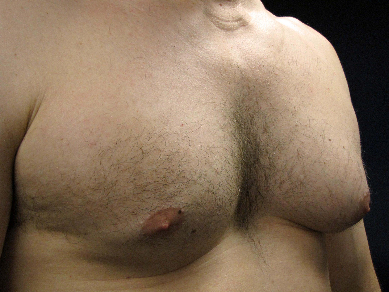 Мастопатия у мужчин пожилого возраста лечение. осложнения при мужской мастопатии. методы лечения мужской мастопатии.