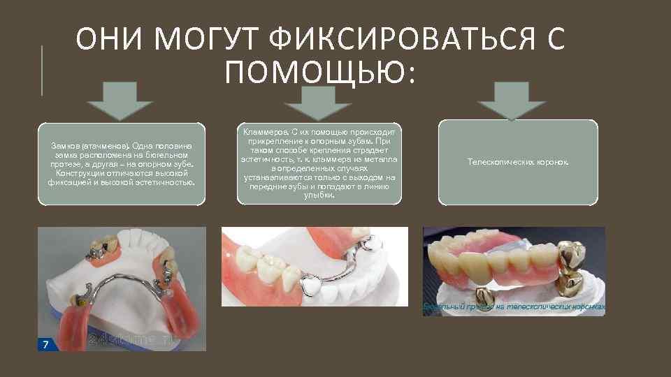 Клинико-лабораторные этапы изготовления литых бюгельных протезов с кламмерной фиксацией - презентация