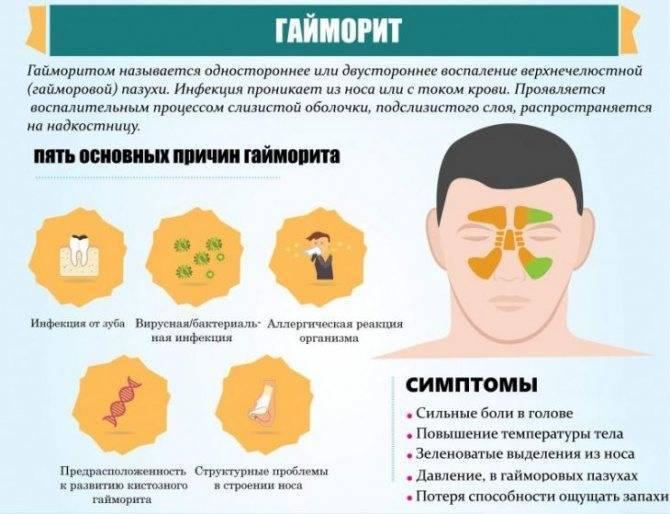 Признаки и лечение аллергической формы гайморита