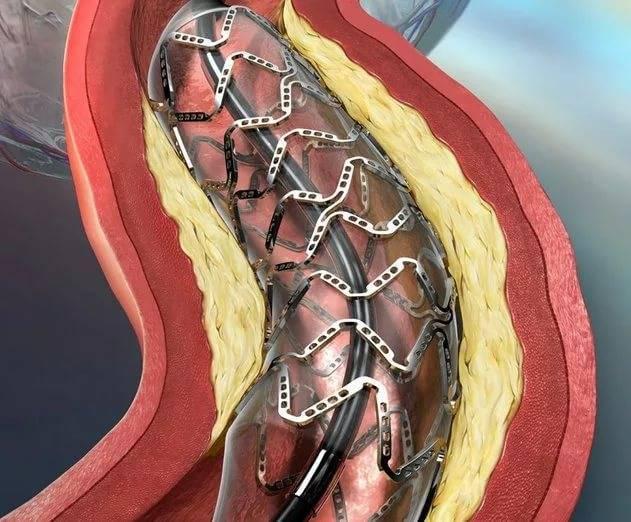 операция холестериновых бляшек