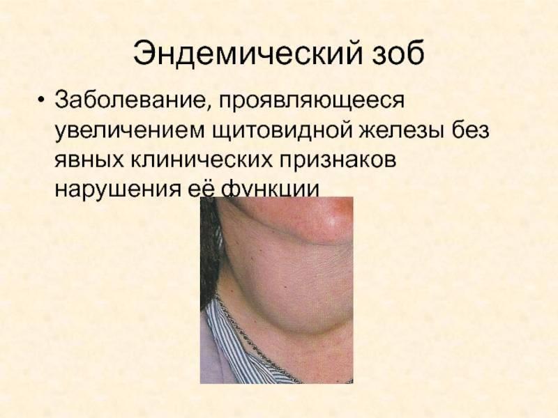 проблемы с эндокринной системой симптомы