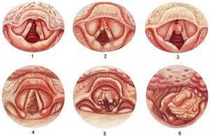 рак гортани 4 стадия