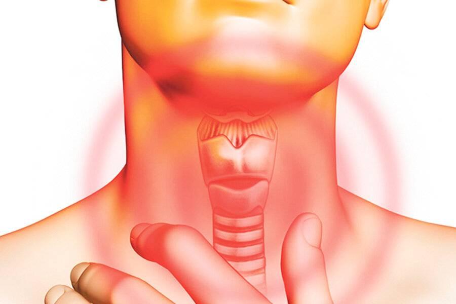 Ожог слизистой горла: медикаментозное и народное лечение