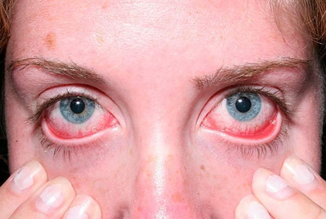 Грибковые заболевания глаз — офтальмомикозы: причины появления и симптомы заболевания, какими средствами лечить