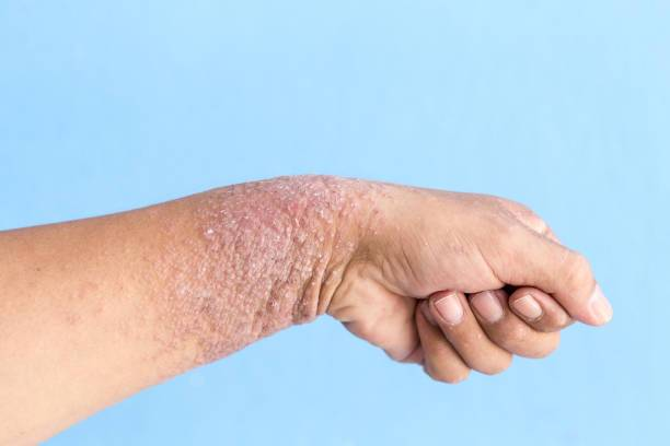 кандидозный дерматит у взрослых