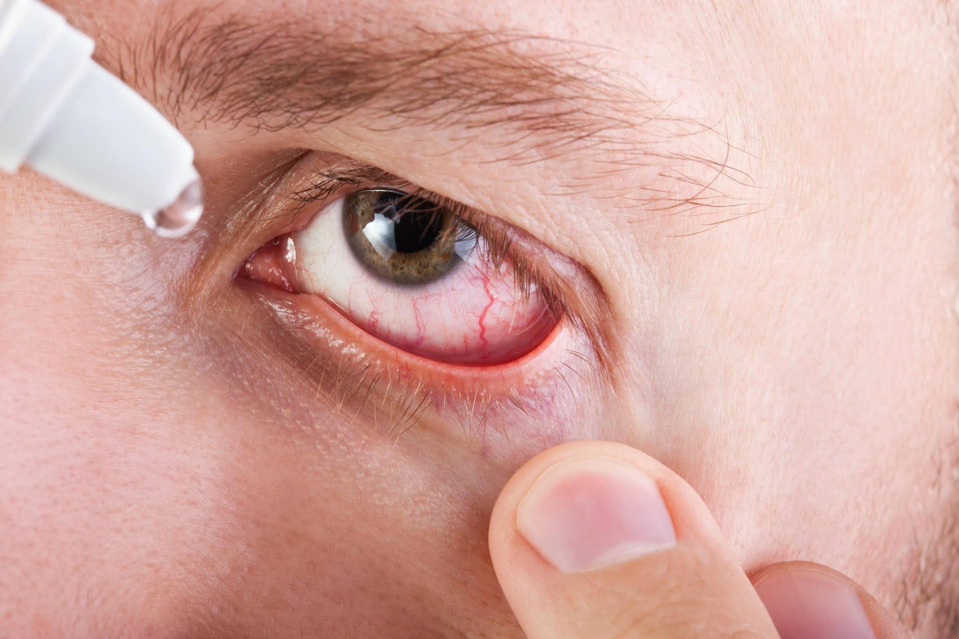 Хламидийный конъюнктивит: рядовое заболевание или опасный недуг?