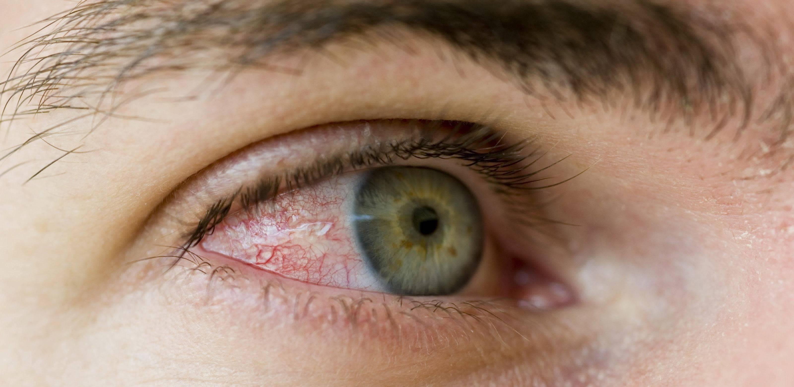 глазные черви у человека