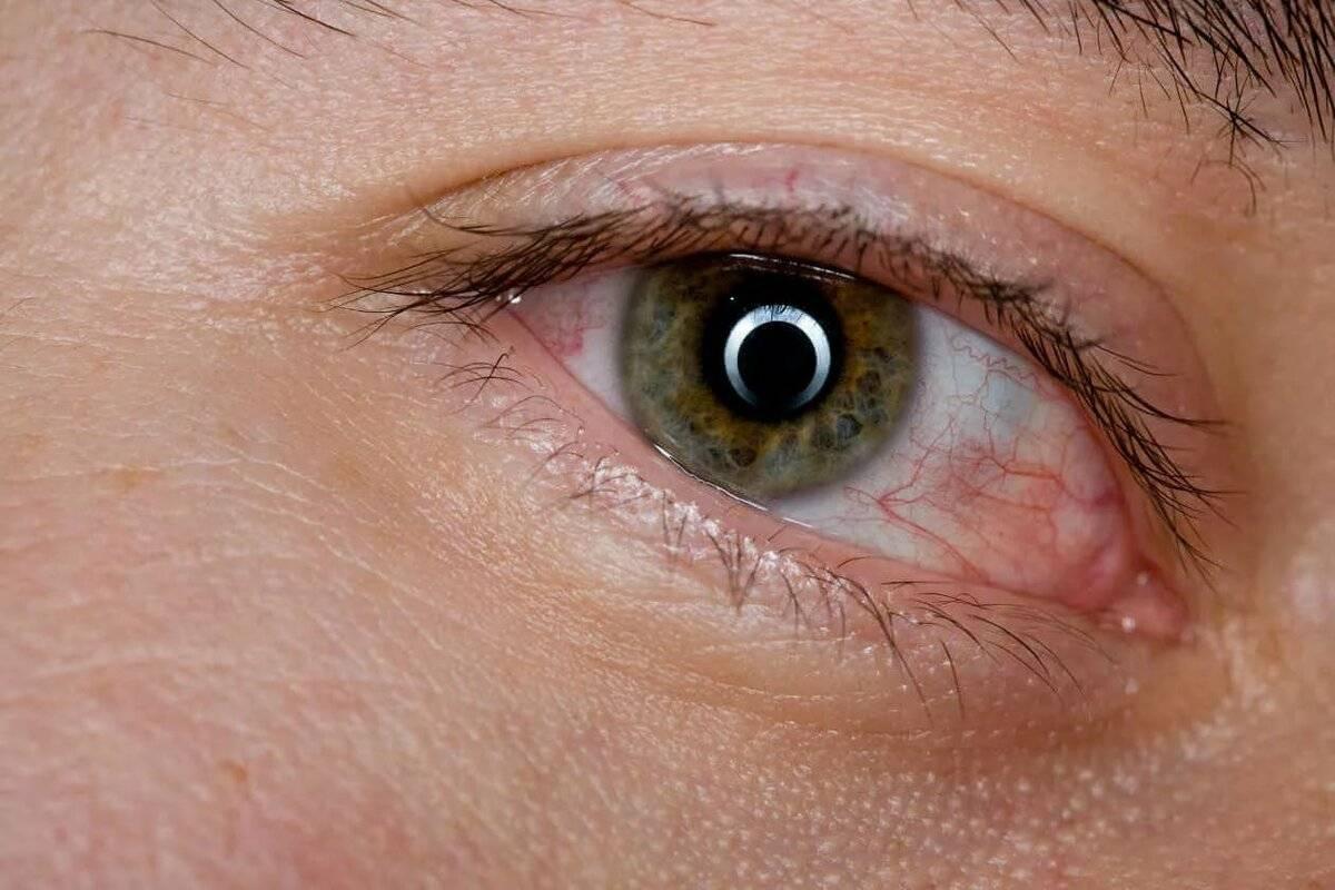 внутренний угол глаза красный что делать