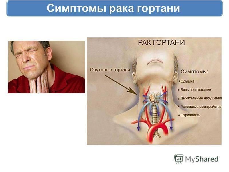 Рак носоглотки: причины заболевания, основные симптомы, лечение и профилактика