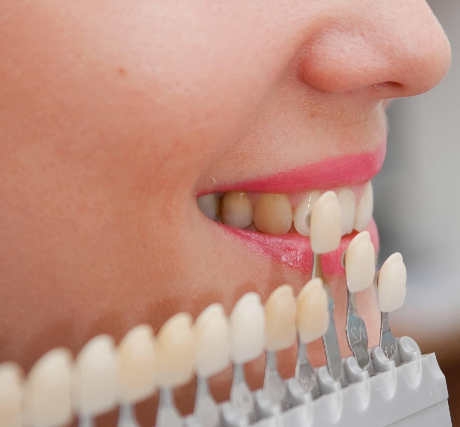 можно ли ставить виниры на кривые зубы