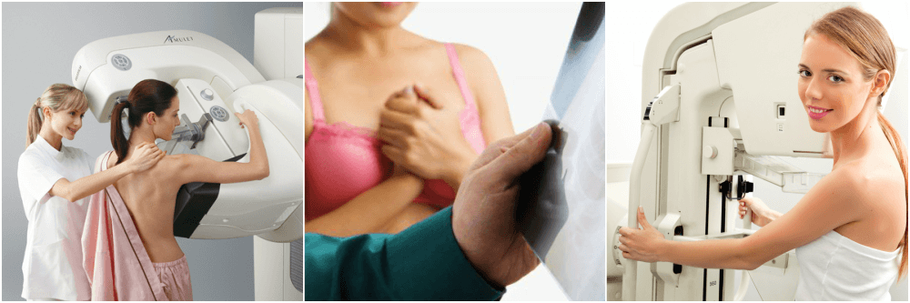 Узи или маммография – что лучше