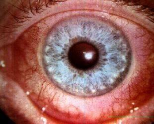 Эписклерит - симптомы болезни, профилактика и лечение эписклерита, причины заболевания и его диагностика на eurolab