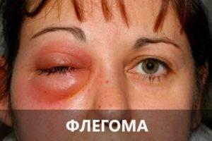Боль в глазном яблоке: этиология, симптоматика, лечение