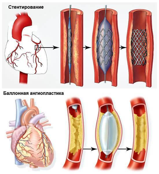 Ангиопластика сосудов (артерий): коронарных, нижних конечностей, сонных