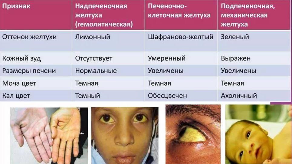 Желтуха новорожденных (неонатальная желтуха). причины, виды, классификация, симптомы и признаки