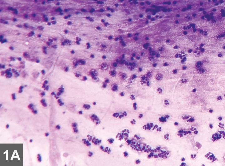 Хламидии пневмонии лечение