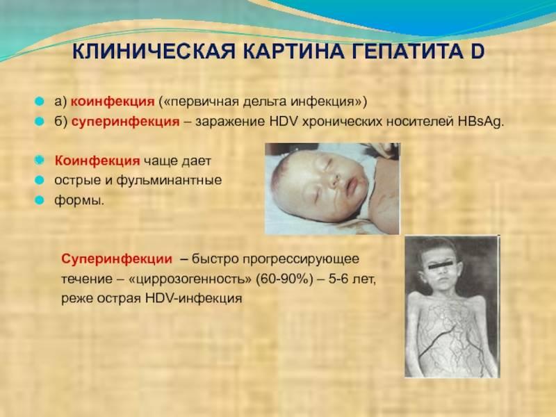 Симптомы и лечение фульминантного гепатита