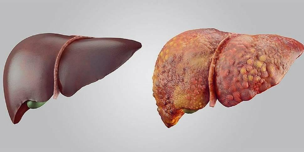 Как передается цирроз печени?