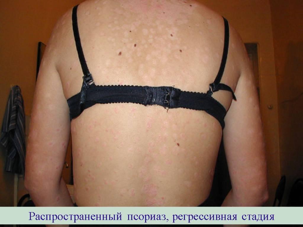 История болезни. распространённый псориаз, внесезонный тип, обычная форма, прогрессирующая стадия.