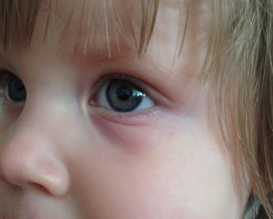 у ребенка мешки под глазами