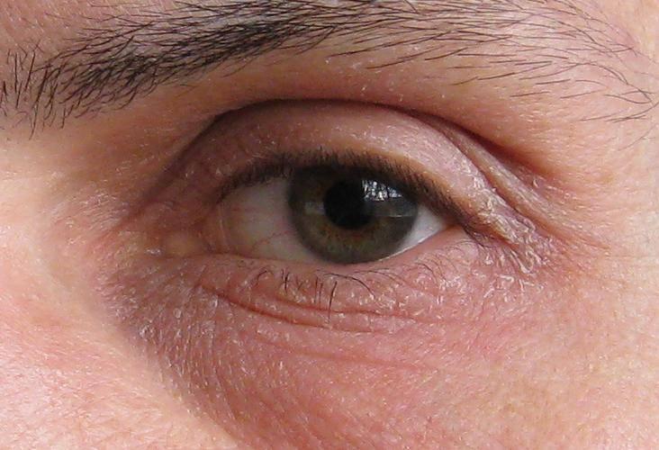 Молочница глаз: симптомы, лечение, профилактика