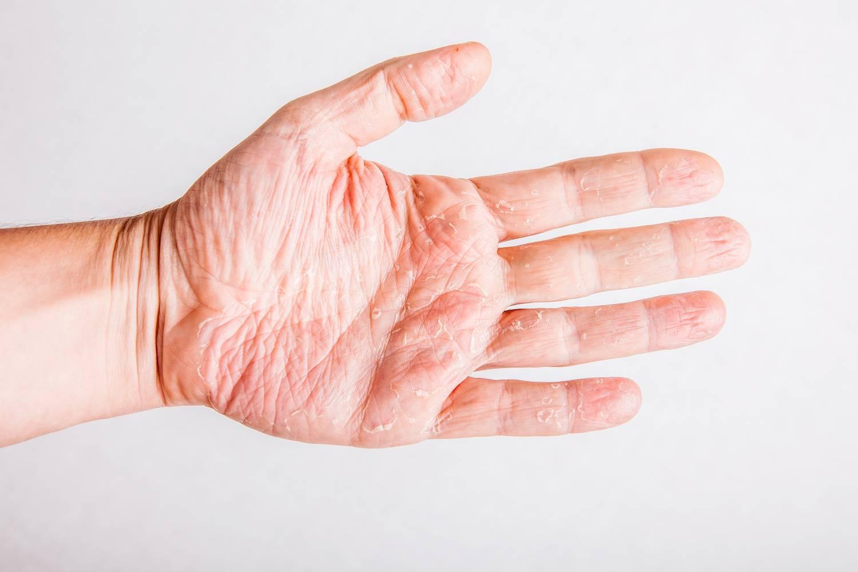 лечение дерматита на ладонях