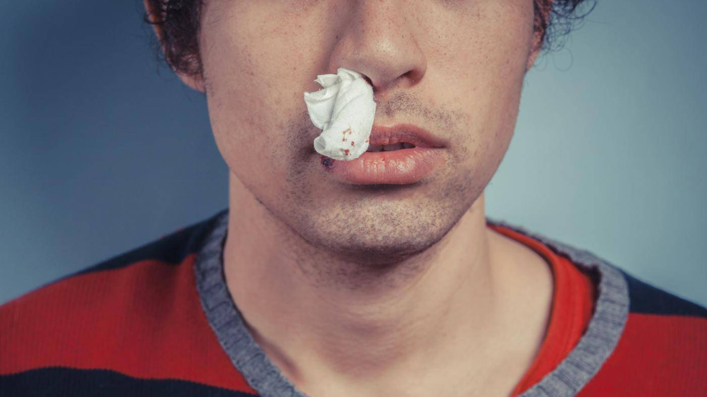 почему нельзя запрокидывать голову когда идет кровь из носа