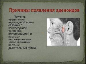 Доктор комаровский о лечении аденоидов 3 степени без операции