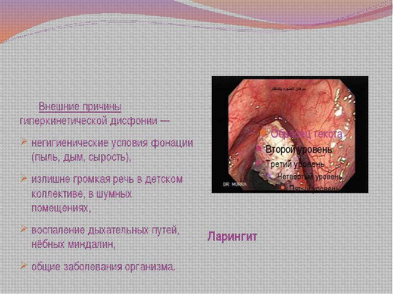 Чем отличается ларингит от фарингита: разница в симптомах и лечении