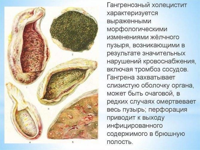 приступ холецистита симптомы