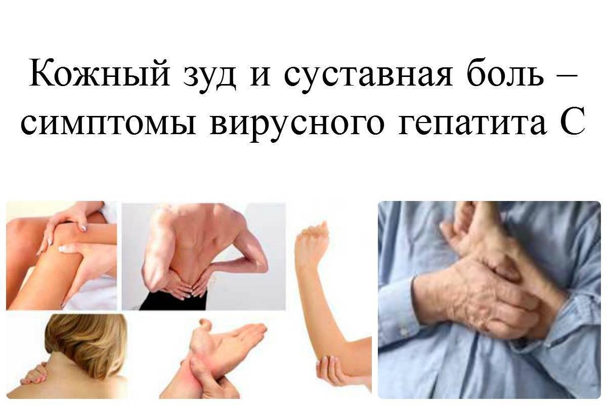 Какие первые признаки и симптомы гепатита с у мужчин