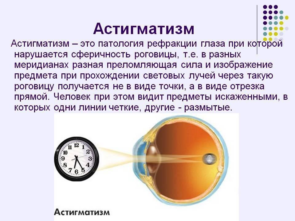 Гиперметропический астигматизм, иначе гипертрофический, простой и сложный, особенности заболевания в сочетании с гиперметропией