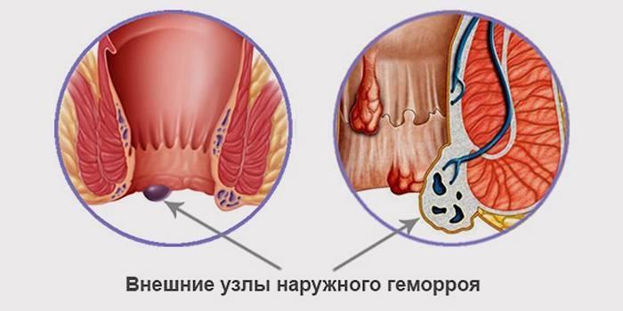 Что такое геморроидальный тромбоз