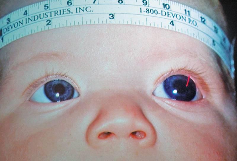 глаукома у новорожденных