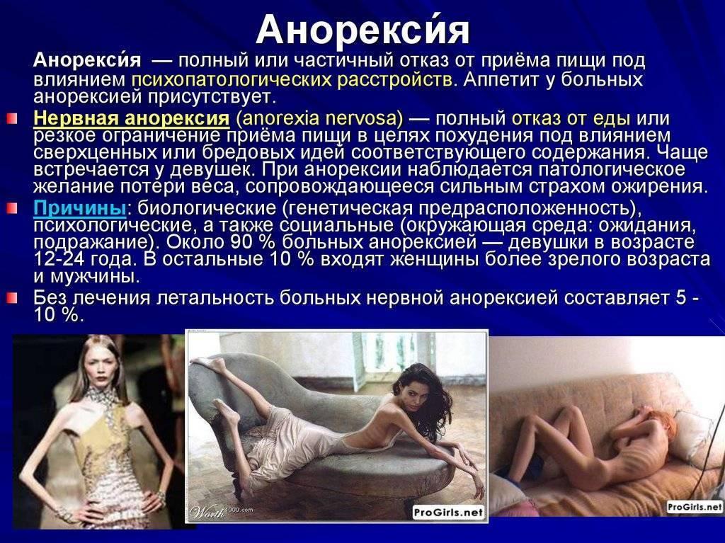 симптомы анорексии у женщин