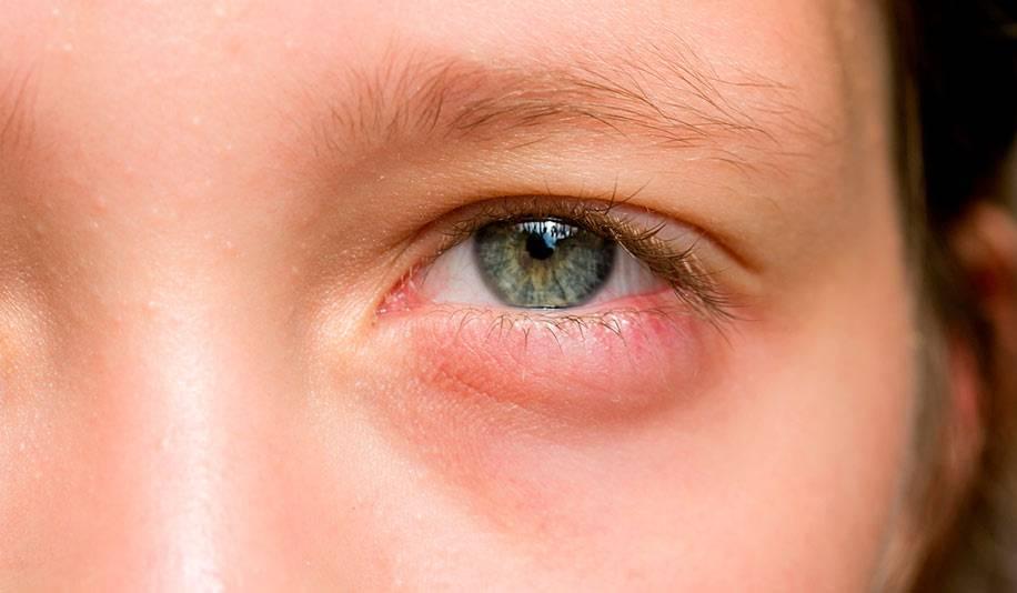 продуло глаз у ребенка