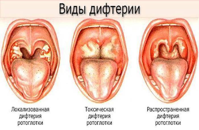 Дифтерия у детей – причины, первые признаки и лечение. опасности заболевания