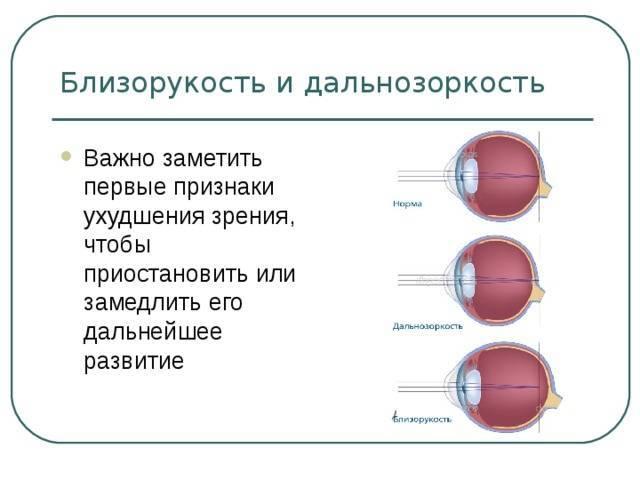 Близорукость и дальнозоркость: что это такое, их основные различия
