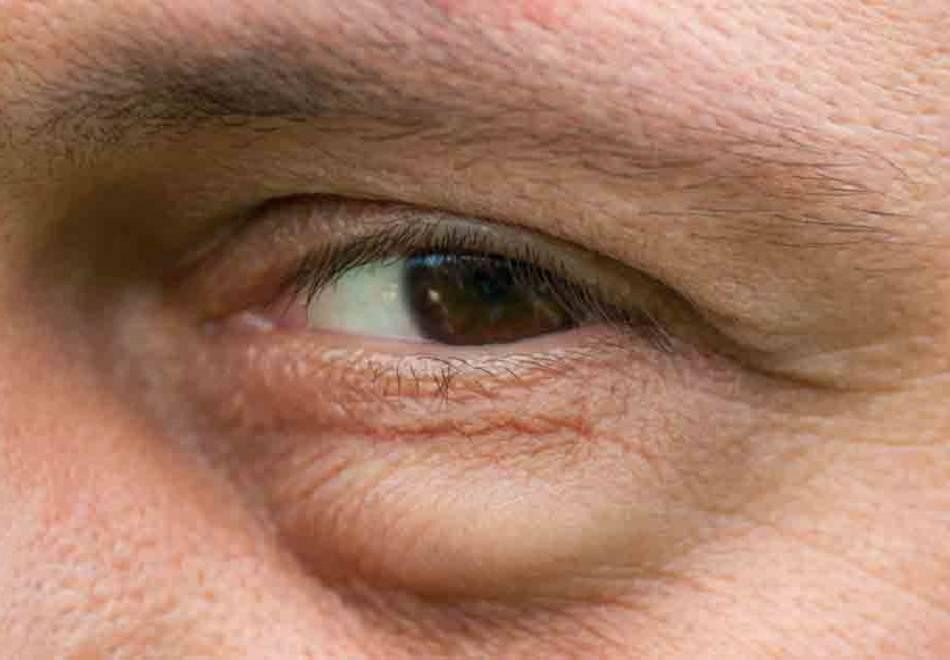 болят веки глаз