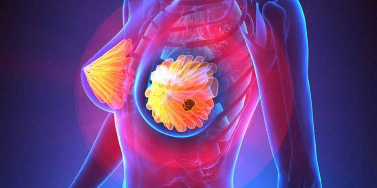 Кто беременел с фиброаденомой? - запись пользователя mylene (id1428147) в сообществе здоровье будущей мамы и малыша в категории грудь - babyblog.ru